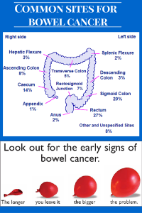 COMMON SITES FOR BOWEL CANCER