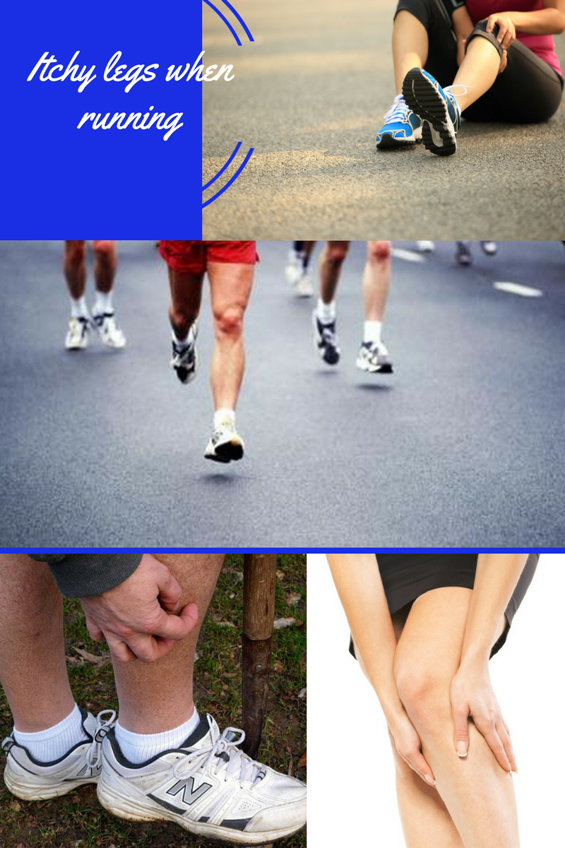 Dealing with itchy legs when running